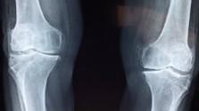 Sacharidy, kosti a kĺby