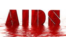 Zaujímavé zisitenia vedcov v liečbe HIV/AIDS